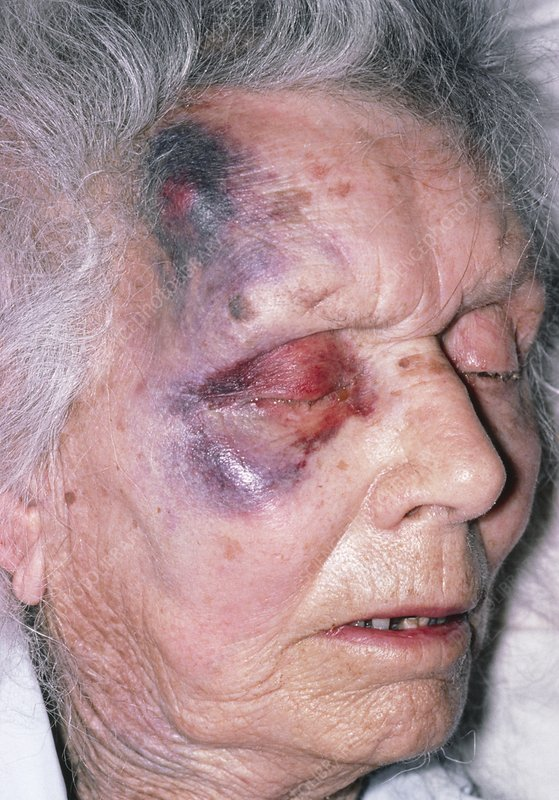 Bruises over the face of an elderly woman