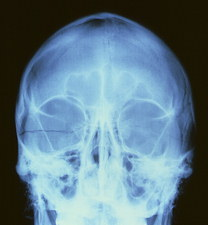 X-ray image of a fractured skull