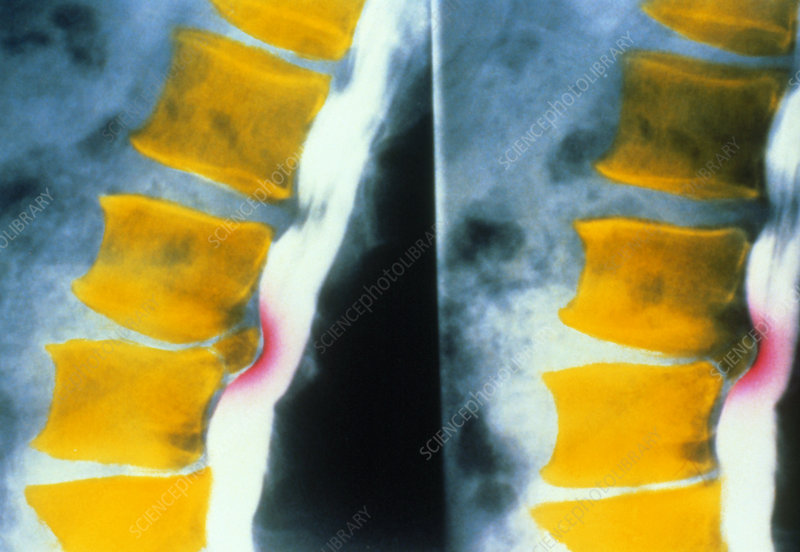 F/col X-ray of slipped (herniated) vertebral disc