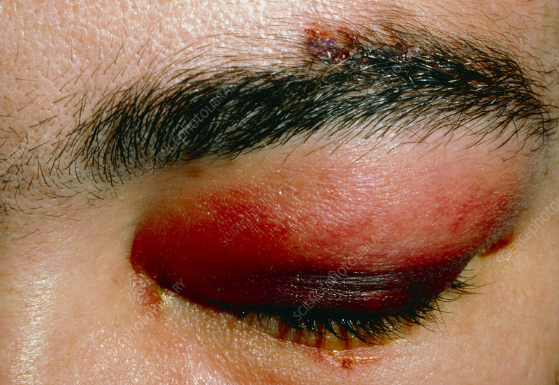 Black eye: haematoma due to assault