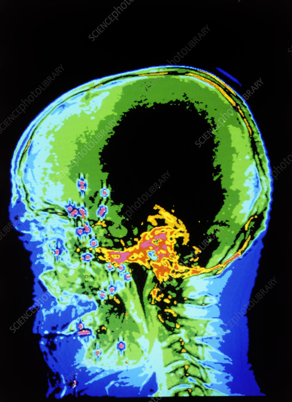 Coloured CT scan showing lead shots within skull