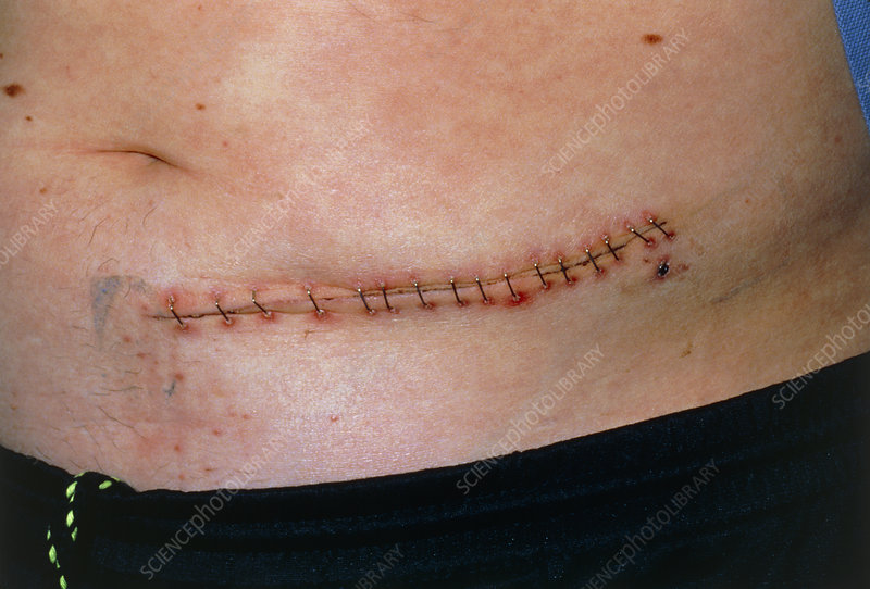 Metal staples closing a wound on a man's abdomen