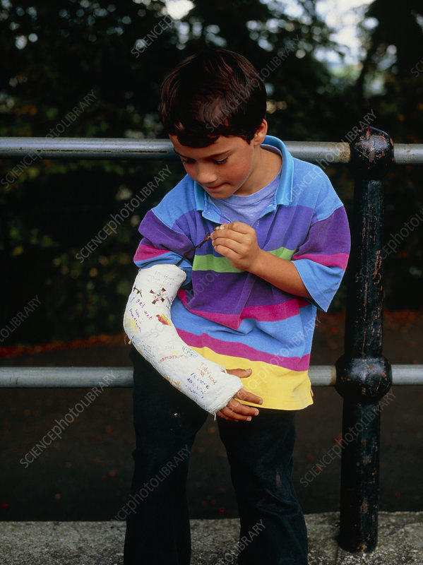 Young boy with the right arm in plaster