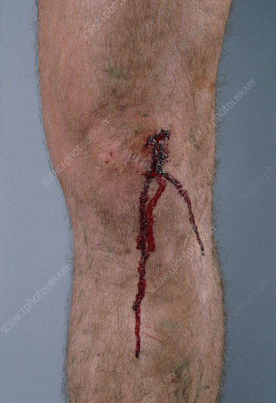 Cut on man's knee with blood flowing down the leg