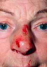 Close-up of elderly woman with a fractured nose