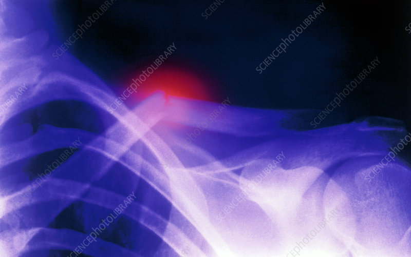 Col X-ray image showing a fractured clavicle