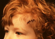 Child with sutured head wound.