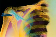 Coloured X-ray of a fractured humerus