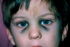 Fractured nose in young boy