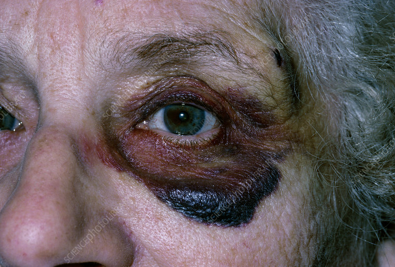Close-up of black eye in elderly woman