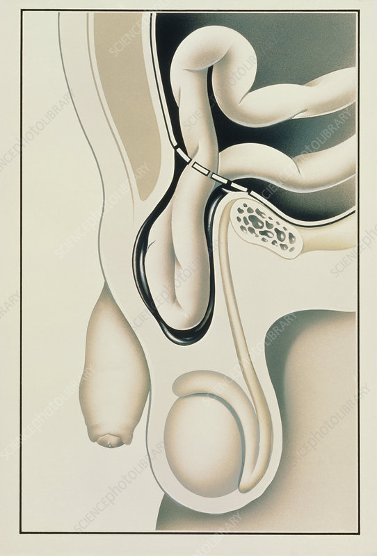 Artwork showing scrotum with inguinal hernia