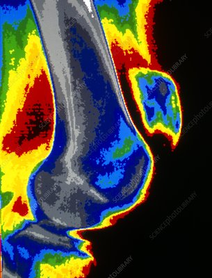 Coloured X-ray of dislocated kneecap