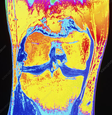Coloured MRI of knee meniscus degeneration