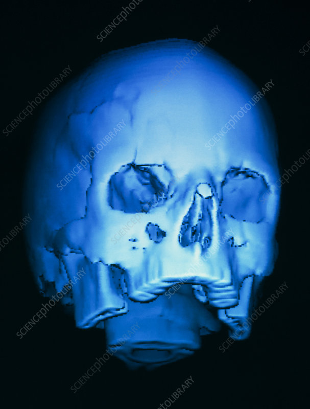 3-D CT scan of skull, with fracture above eye