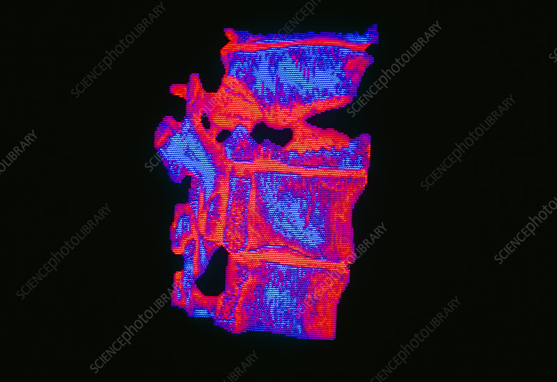 Coloured 3-D CT scan of a fractured vertebra
