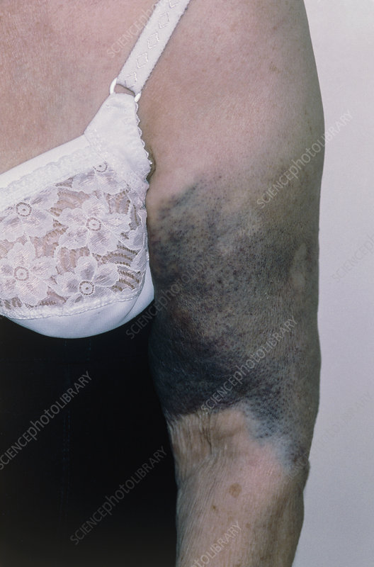 Bruising on a woman's arm due to fractured humerus