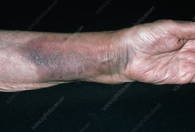 Bruising on a woman's arm due to fractured radius