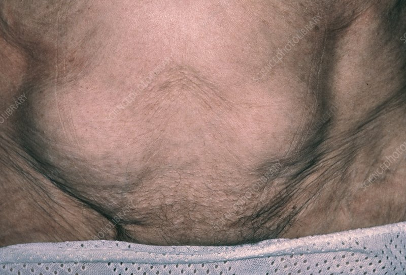 Bilateral inguinal hernia in a 75-year-old woman