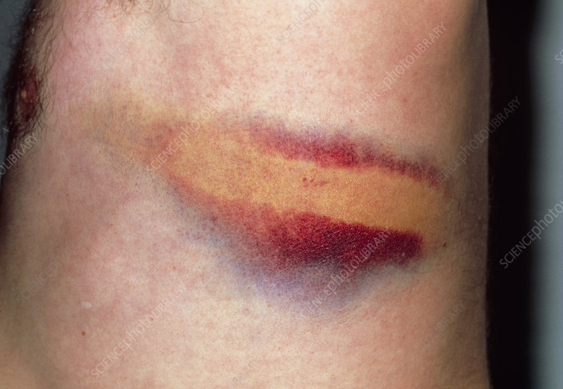 Rib bruising following assault with iron bar