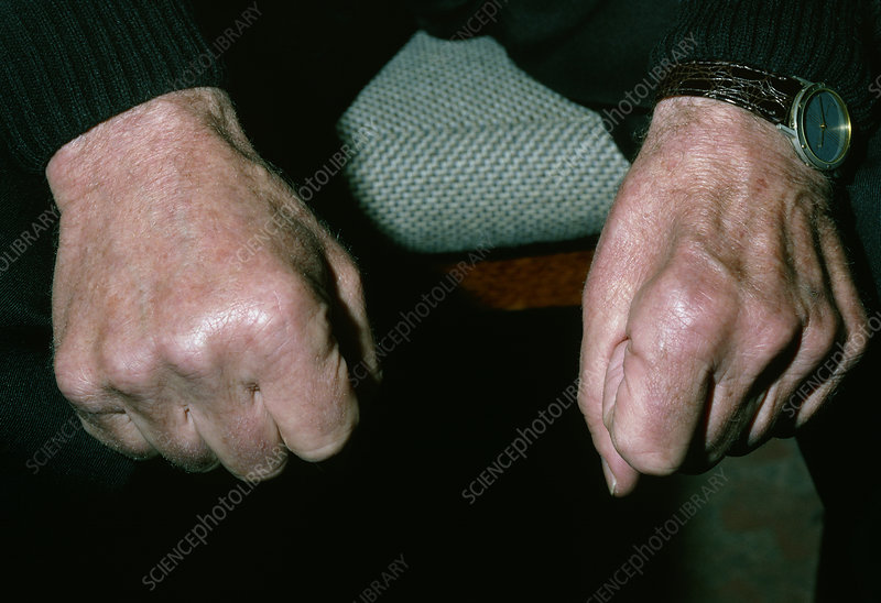 Muscle wasting in hand due to ulnar nerve damage - Stock