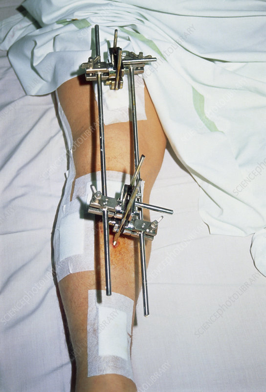 Metal frame attached to a patient's broken leg