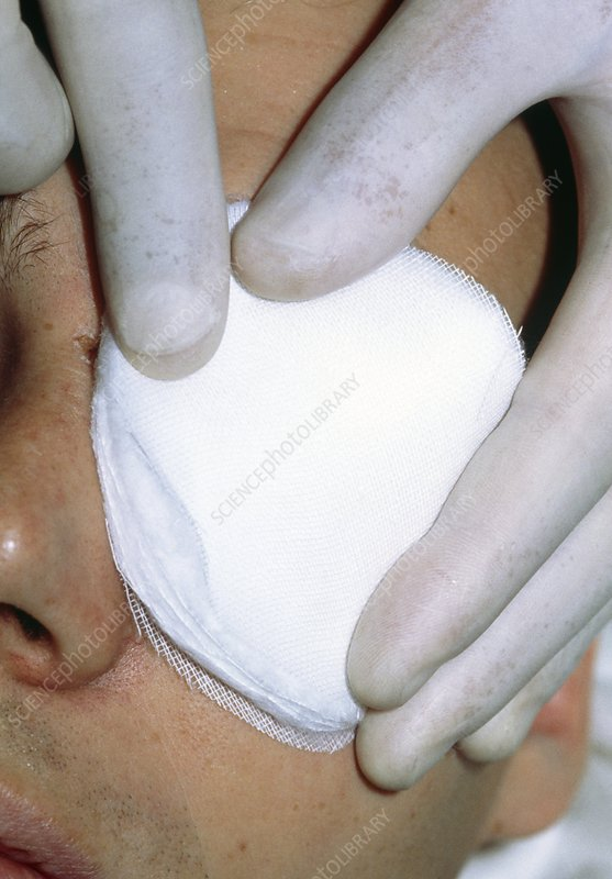 Gloved fingers apply dressing to patient's eye