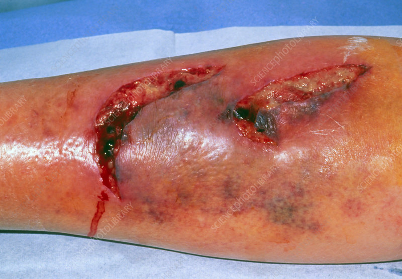 Infected lacerations on the leg of elderly woman