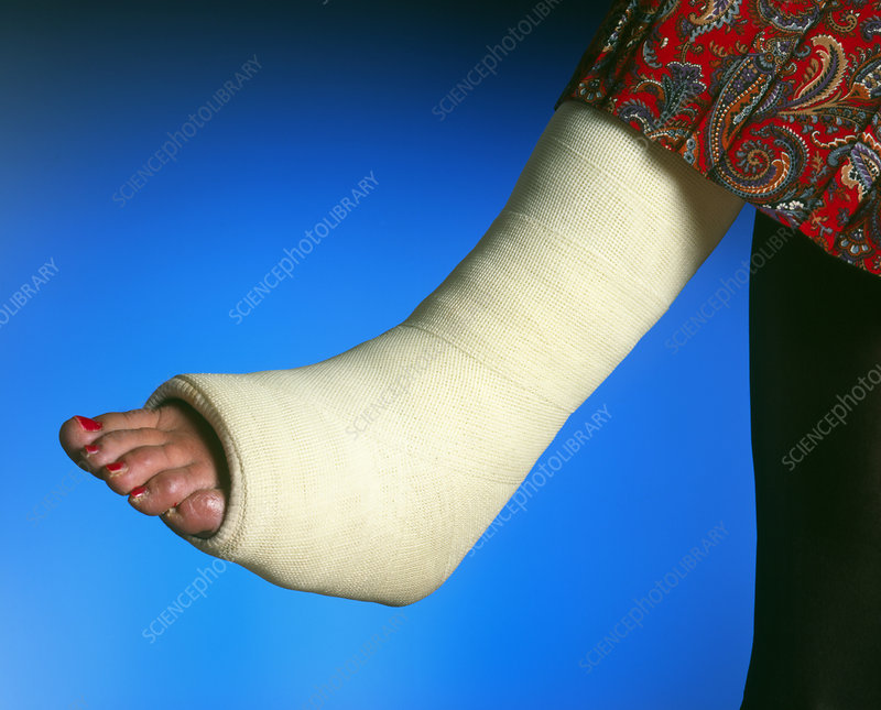 Plaster Cast On The Broken Leg Of A Woman Stock Image M3300566