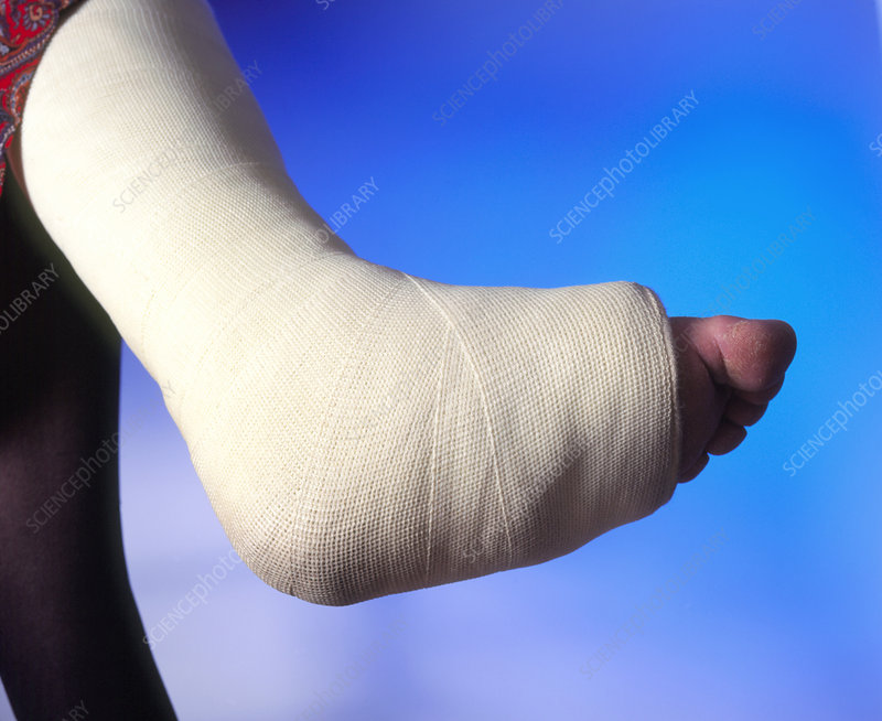 Plaster Cast On The Broken Leg Of A Woman Stock Image M3300567