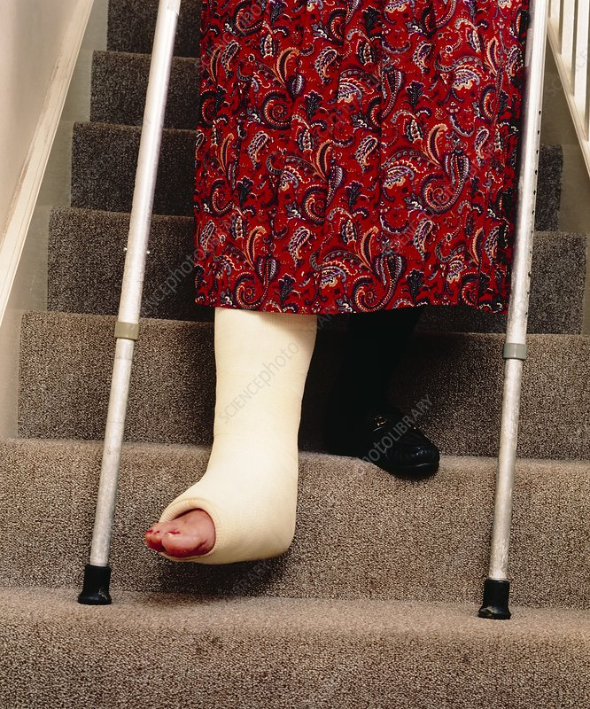 Woman's legs, one broken, using staircase