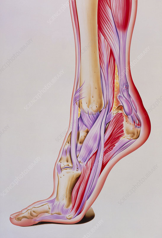 Artwork of acute inflammation of achilles tendon