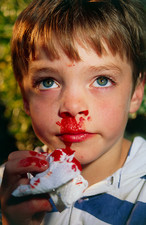 Boy, aged six, with nosebleed