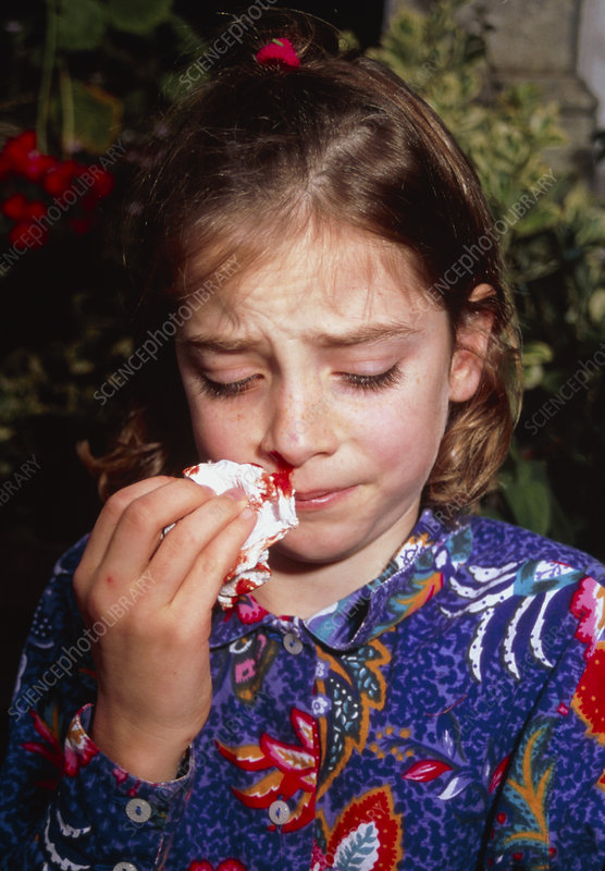 Ten-year-old girl with a nosebleed