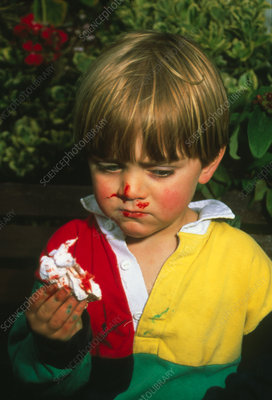 Three-year-old boy with nosebleed
