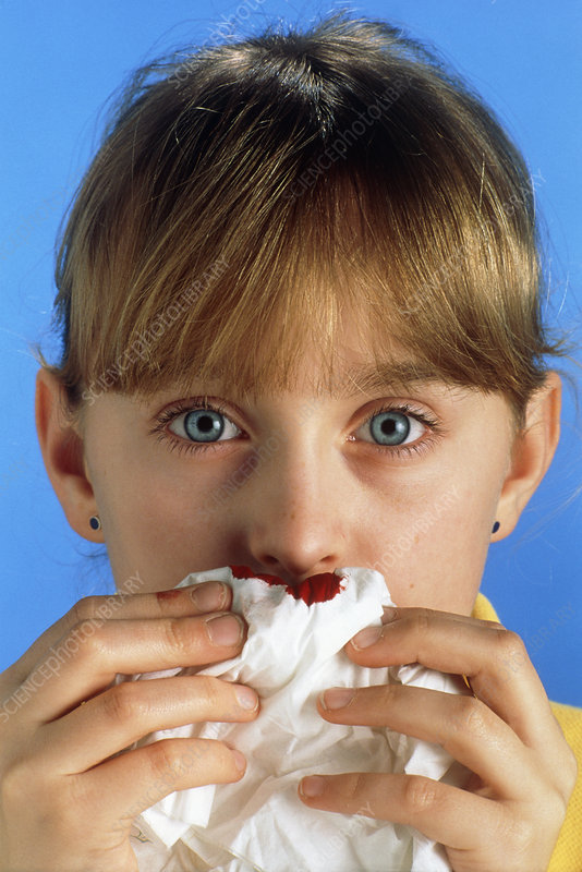 Young girl with a nosebleed