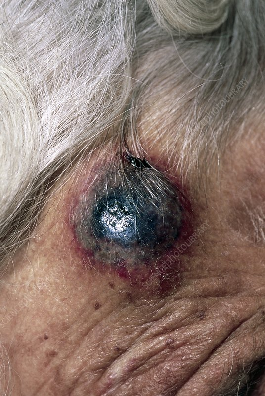 Haematoma of the head of elderly woman on steroids