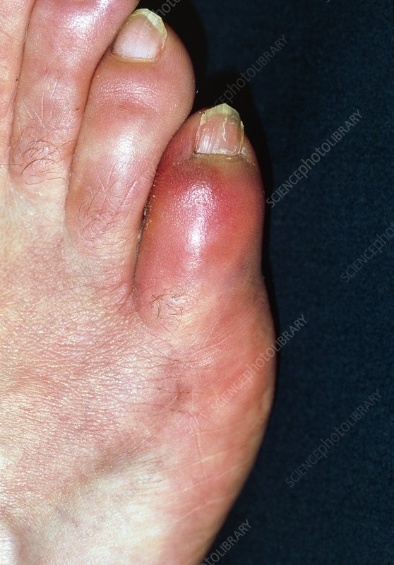 Close-up of red and swollen fractured little toe