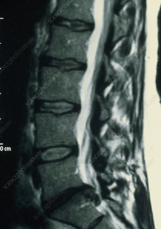 MRI scan of the back showing prolapsed disc.