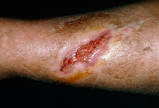Wound healing six weeks after elderly woman's fall