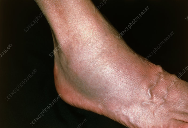 Close-up of swollen ankle due to fibula fracture