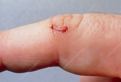 Close-up of a small cut healing on a finger