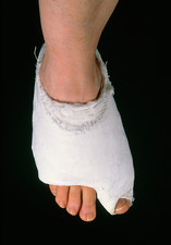 Bandaged foot after bunion operation