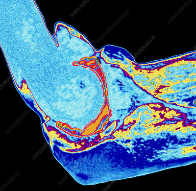 Coloured X-ray of elbow joint injury due to RSI