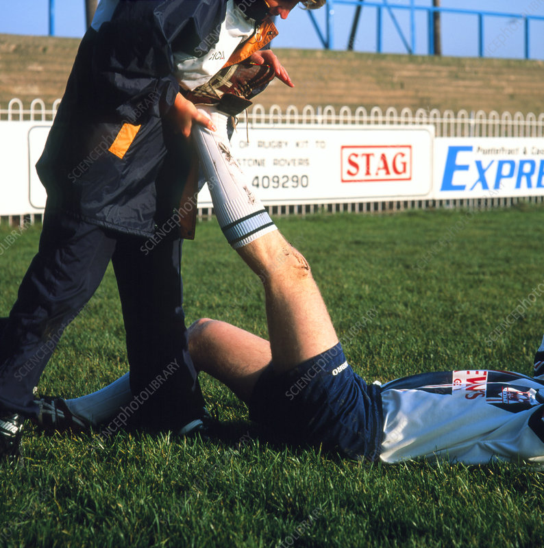 Physiotherapist stretching player's calf