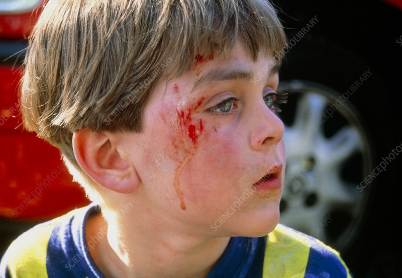 Laceration on the face of a 5-year-old boy