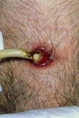 Infected Catheter In An Elderly Man S Abdomen Stock
