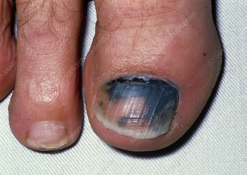 View Of A Subungual Haematoma Under Toenail Stock Image M330
