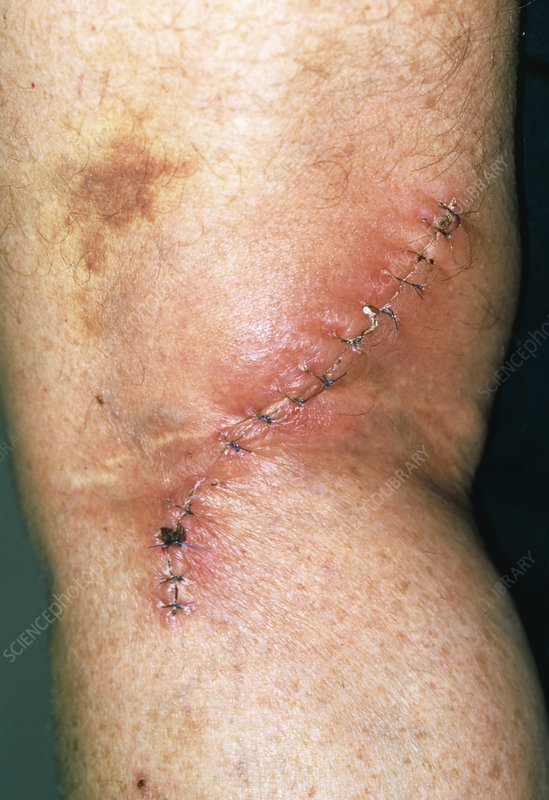 Infected sutures following baker's cyst excision