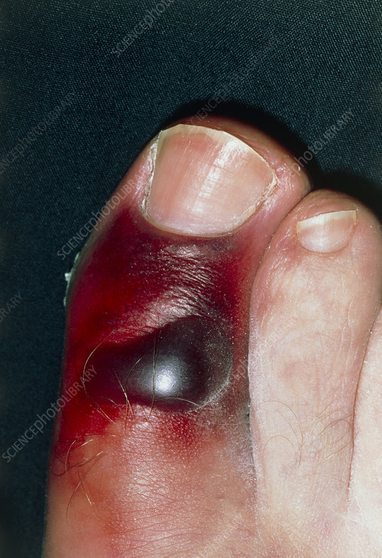 Bruising caused by a fracture of the big toe