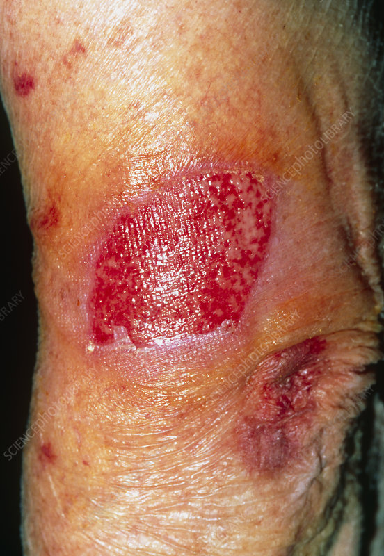 Skin loss on an elderly woman's arm after a trauma